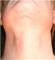 tracheal shave revisited amynews com